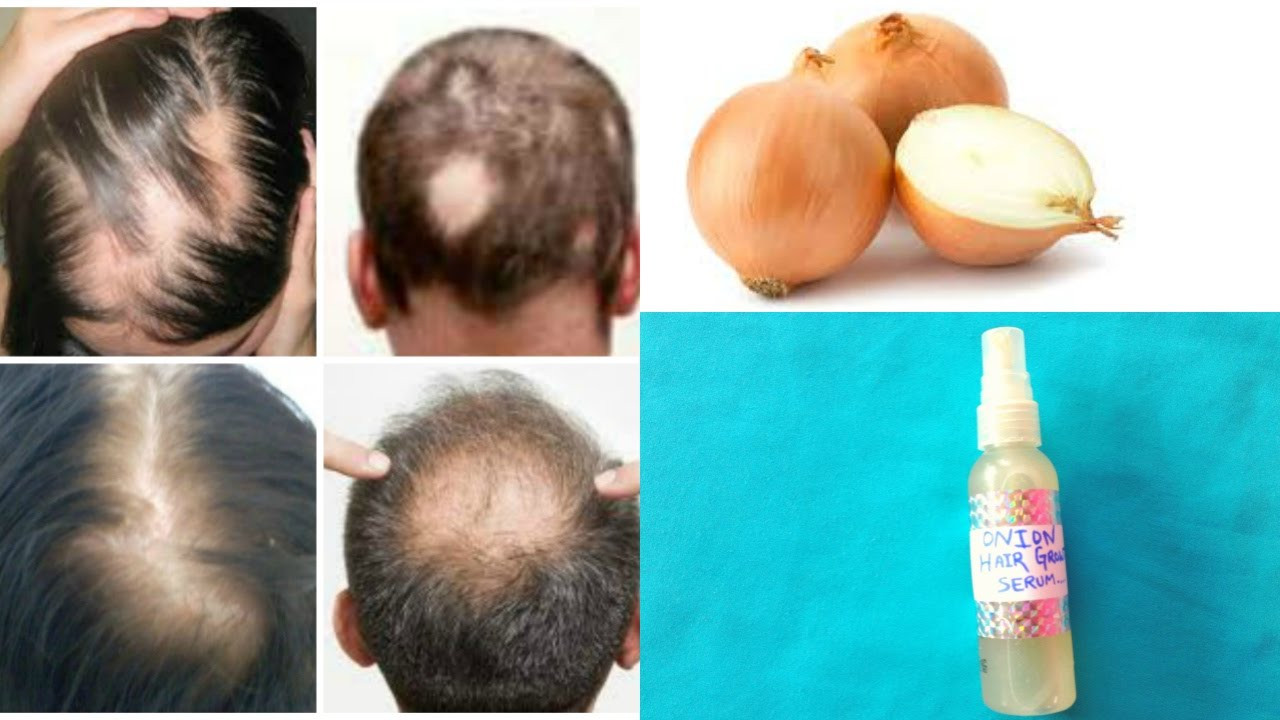 The Best New Cures of 2018 For People With Hairlosstalk In Thame